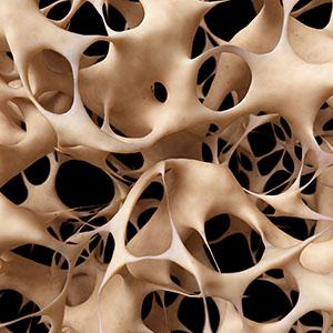 Struan F. Grant / 3D Genomics and Osteoporosis